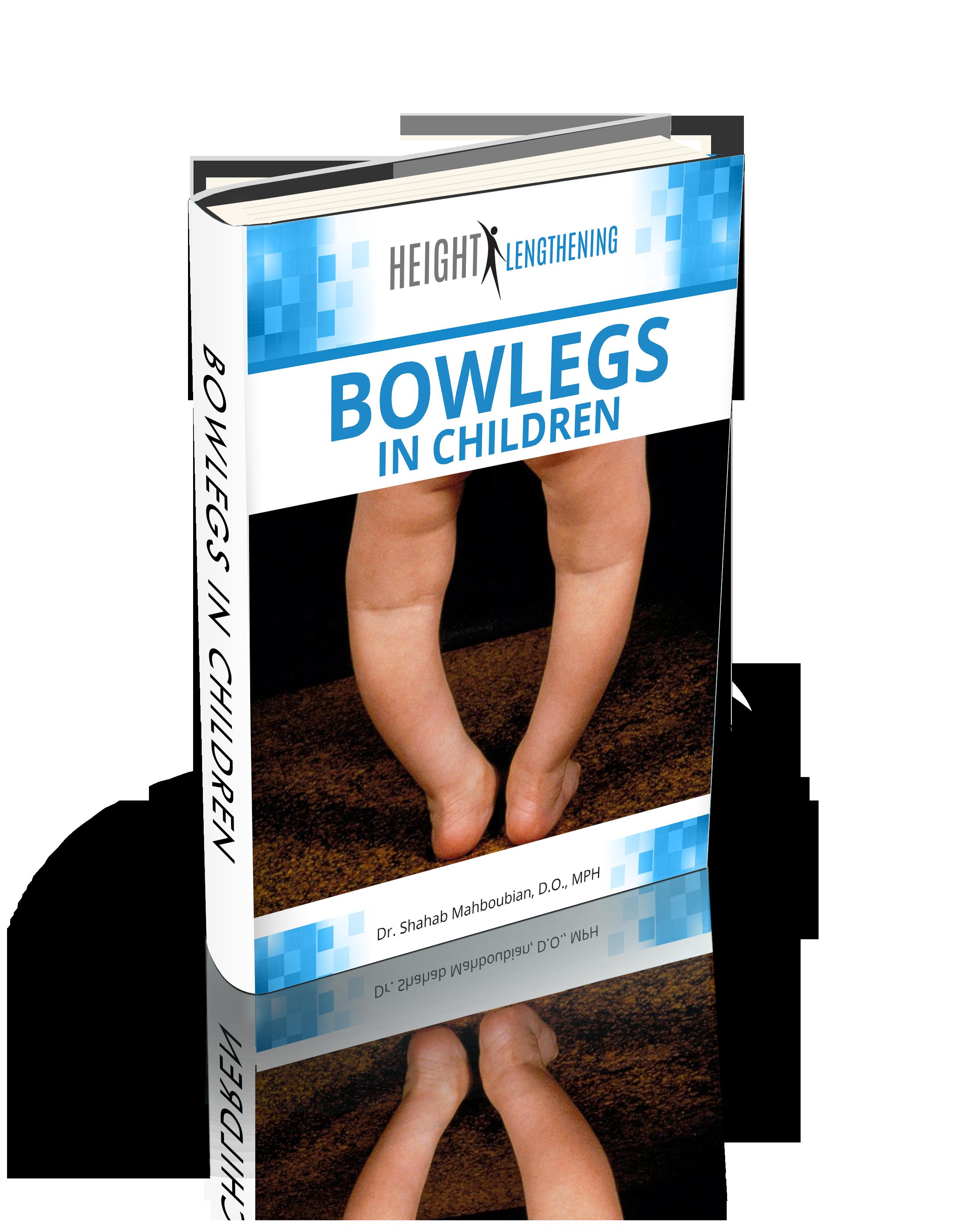 Bowlegs in Children FREE eBook Download
