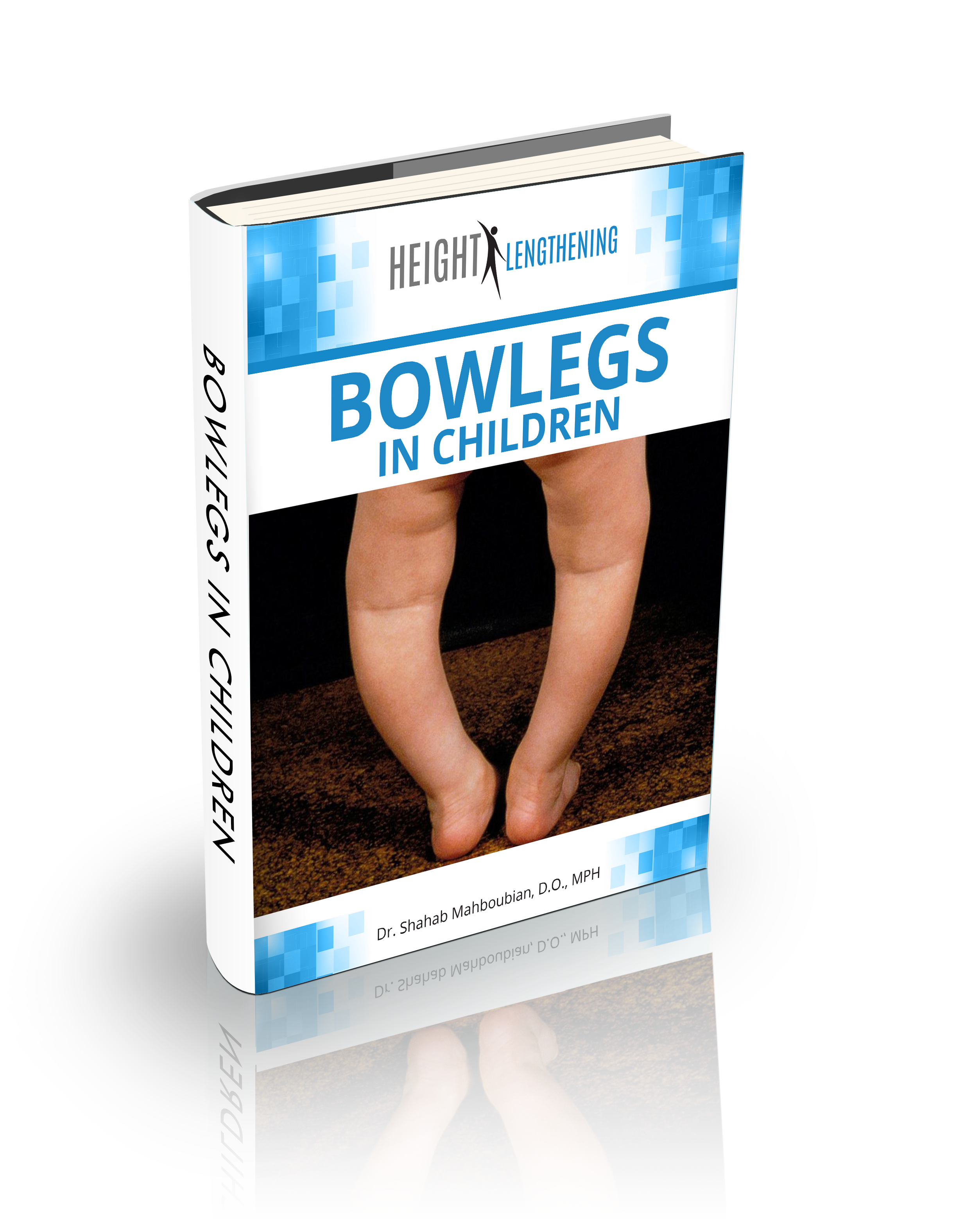 Bowlegs in Children FREE eBook Download