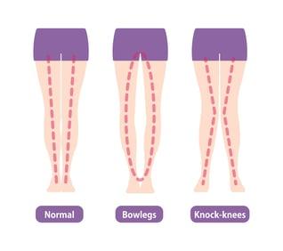 bow legs comparison