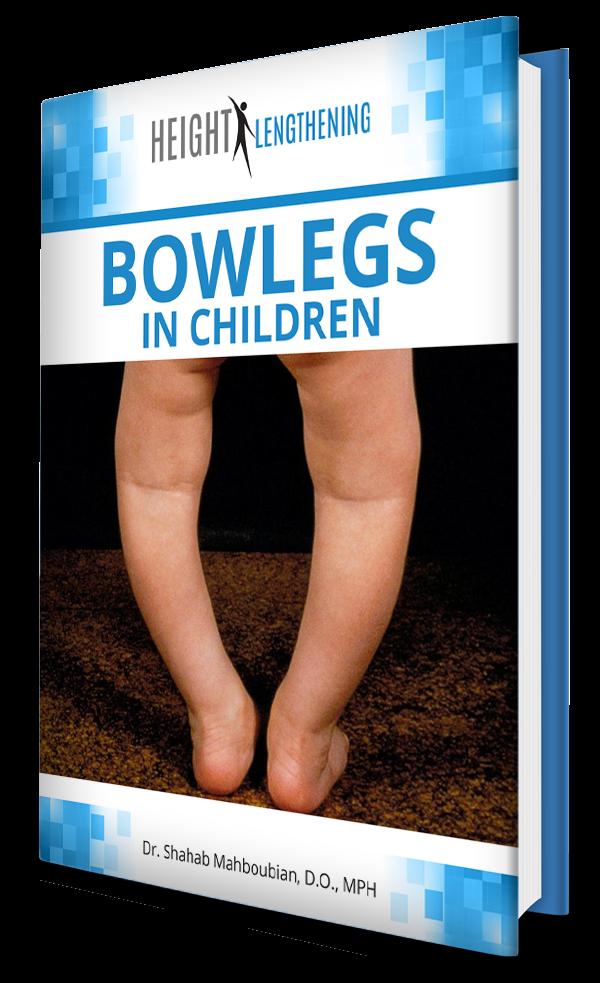 bowlegs-in-children-new-ebook-graphic