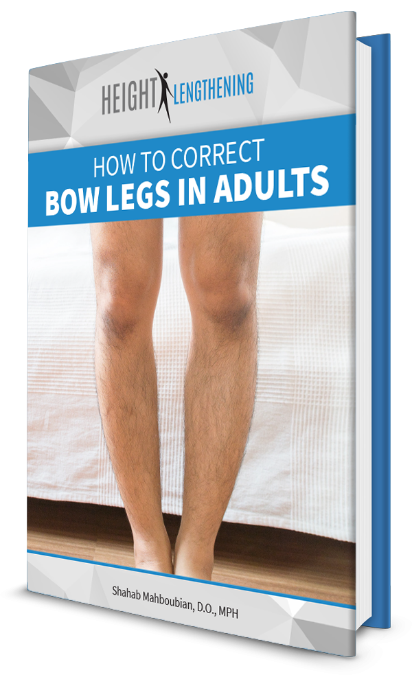 how-to-correct-bow-legs-in-adults-ebook-graphic