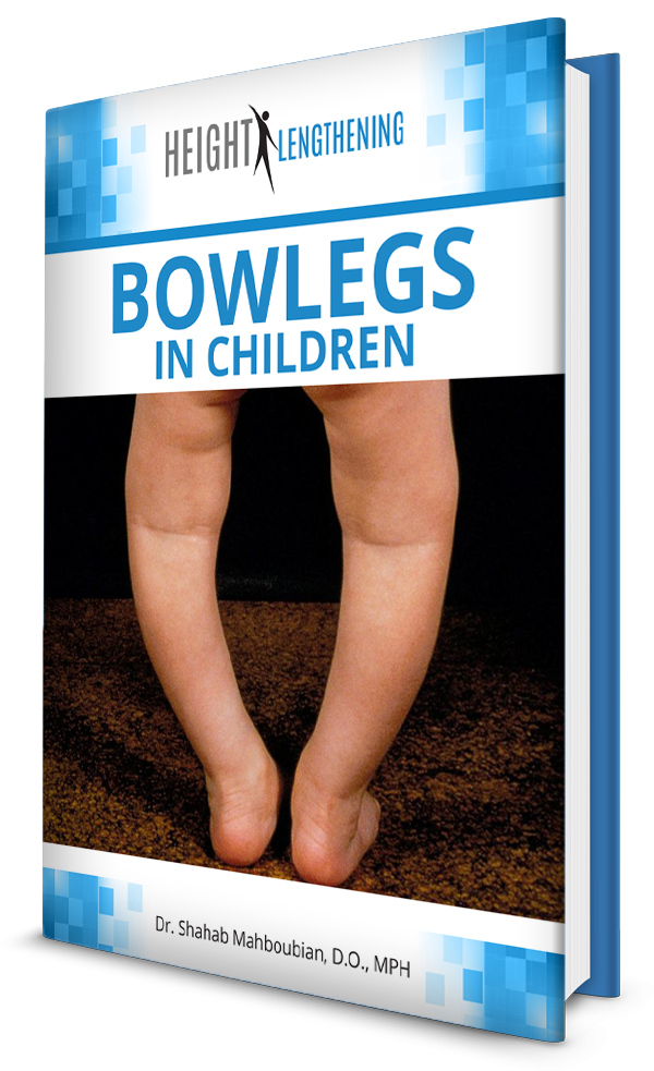 bowlegs-in-children-new-ebook-graphic